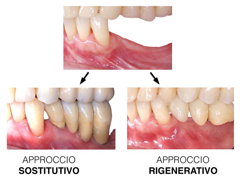 app_sostitutivo_app_rigenerativo